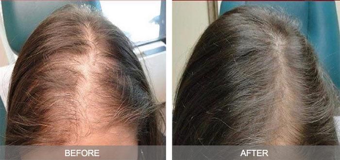 Hair Restoration Treatment Cochrane & Calgary
